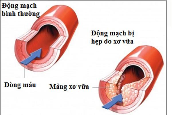 Những dấu hiệu của bệnh cao huyết áp.